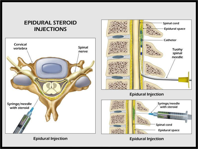 epidural steroid injections pros and cons