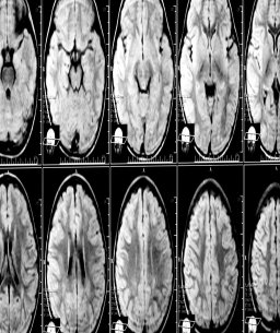 Brooklyn Brain injury Lawyer Discusses the Serious Damages a Patient Suffers Due to Memory Problems