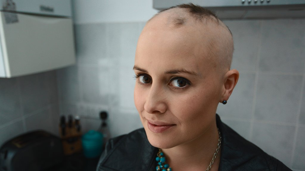 Taxotere Hair Loss: Breast Cancer Drug Causes Alopecia in Women