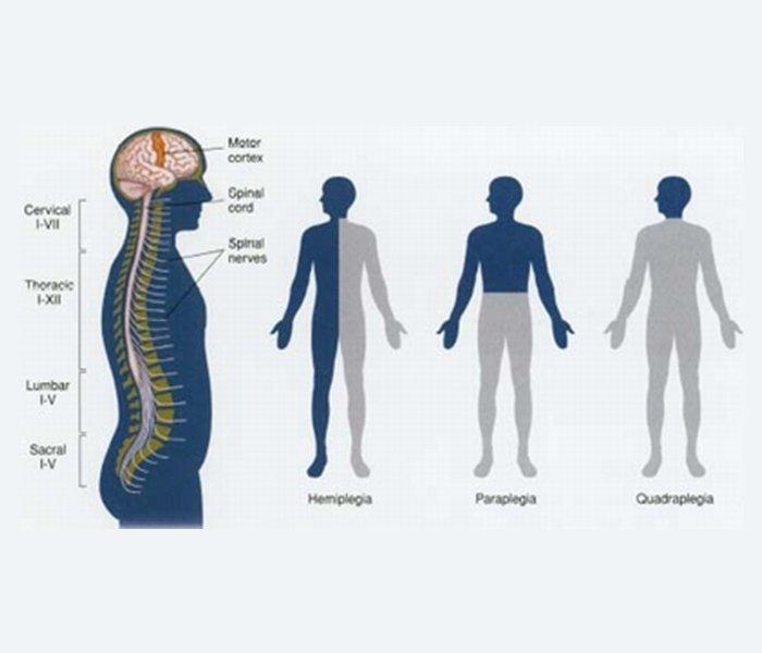 Image result for paraplegia and quadriplegia