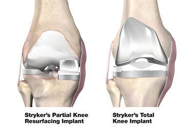 Total Knee Replacement After an Accident at Work