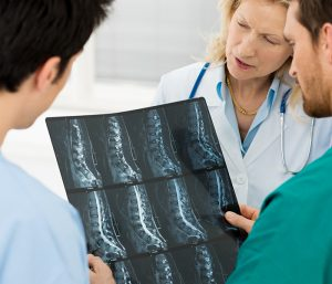 doctor looking at spinal cord x ray