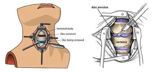 spinal cord surgery