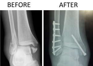 Trimalleolar_Ankle_Fracture_Xray_shown_before_surgery_and_after_surgery